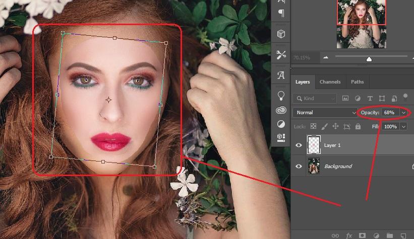 Alternet face placement