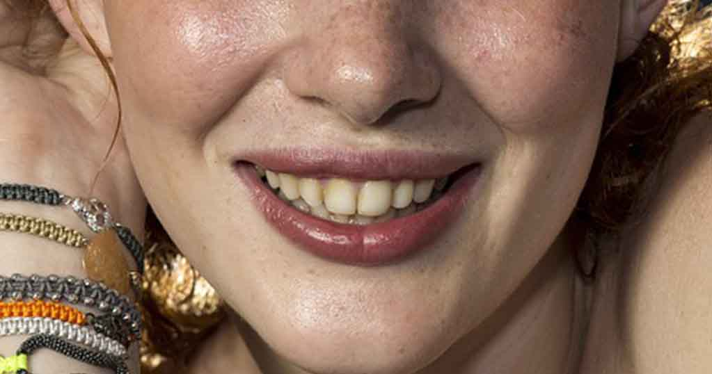 Sample Image (Teeth Whitening in Photoshop)