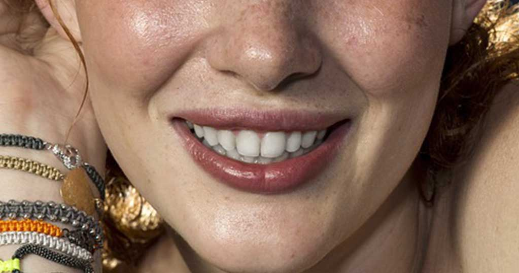 Final Image (Teeth Whitening in Photoshop)